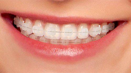 niềng răng bao nhiêu tiền